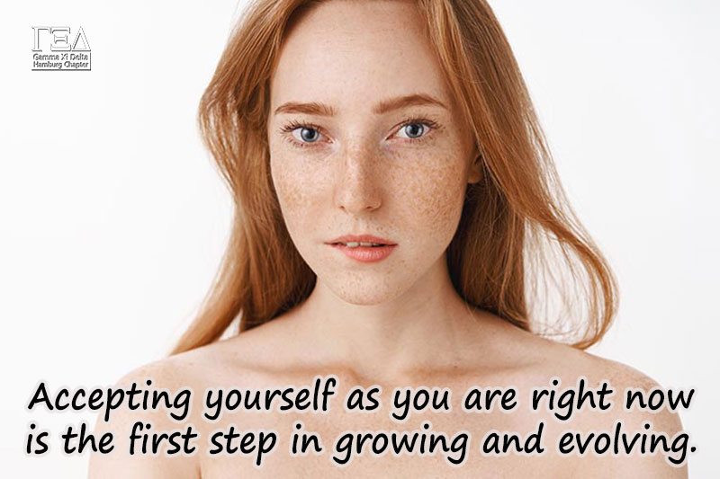 Accepting yourself as you are right now is the first step in growing and evolving.